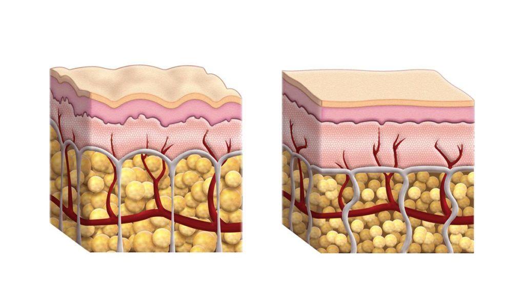 formazione della cellulite nella pelle